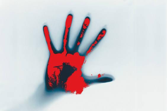 hand rot 564